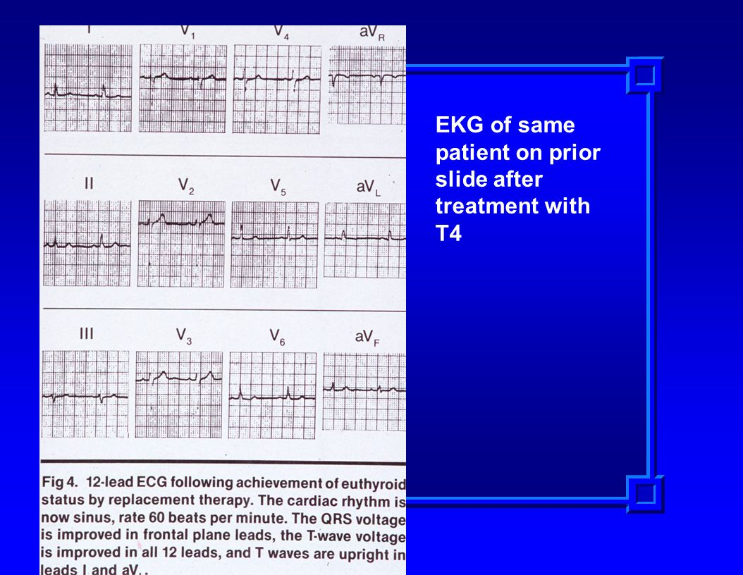 EKG of same patient on prior slide after treatment with T4