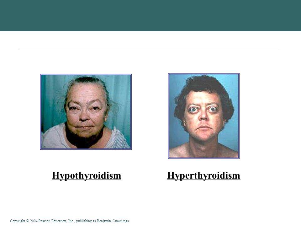 Copyright © 2004 Pearson Education, Inc., publishing as Benjamin Cummings Hypothyroidism Hyperthyroidism