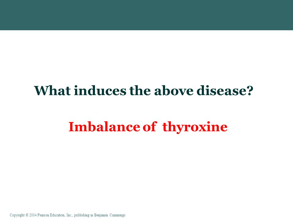 Copyright © 2004 Pearson Education, Inc., publishing as Benjamin Cummings What induces the above disease? Imbalance of thyroxine