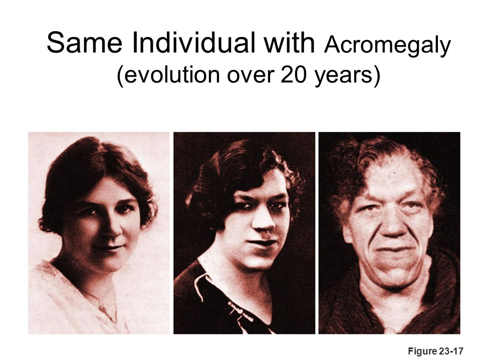Figure 23-17 Same Individual with Acromegaly (evolution over 20 years)