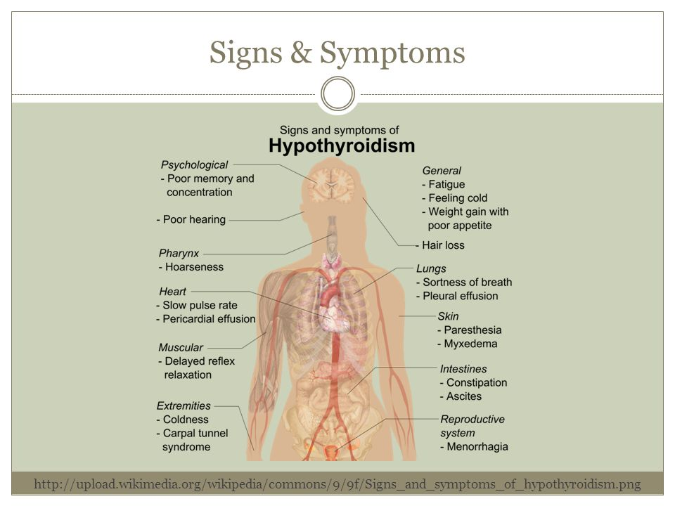 Signs & Symptoms http://upload.wikimedia.org/wikipedia/commons/9/9f/Signs_and_symptoms_of_hypothyroidism.png