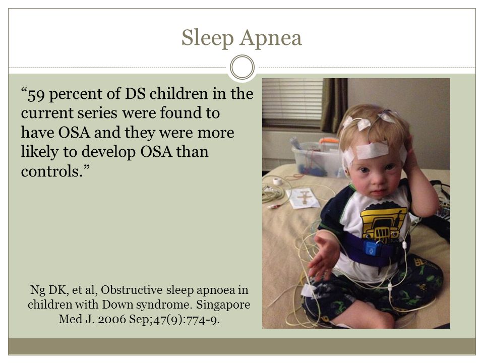 "Sleep Apnea ""59 percent of DS children in the current series were found to have OSA and they were more likely to develop OSA than controls."" Ng DK, et"