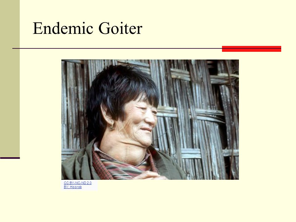 Endemic Goiter CC:BY-NC-ND 2.0 BY: Hoorob