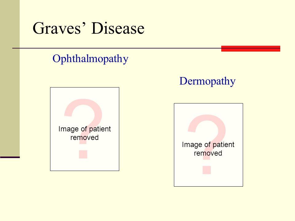 Graves' Disease Dermopathy Ophthalmopathy Image of patient removed Image of patient removed