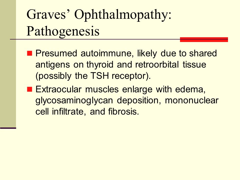 Graves' Ophthalmopathy: Pathogenesis Presumed autoimmune, likely due to shared antigens on thyroid and retroorbital tissue (possibly the TSH receptor).
