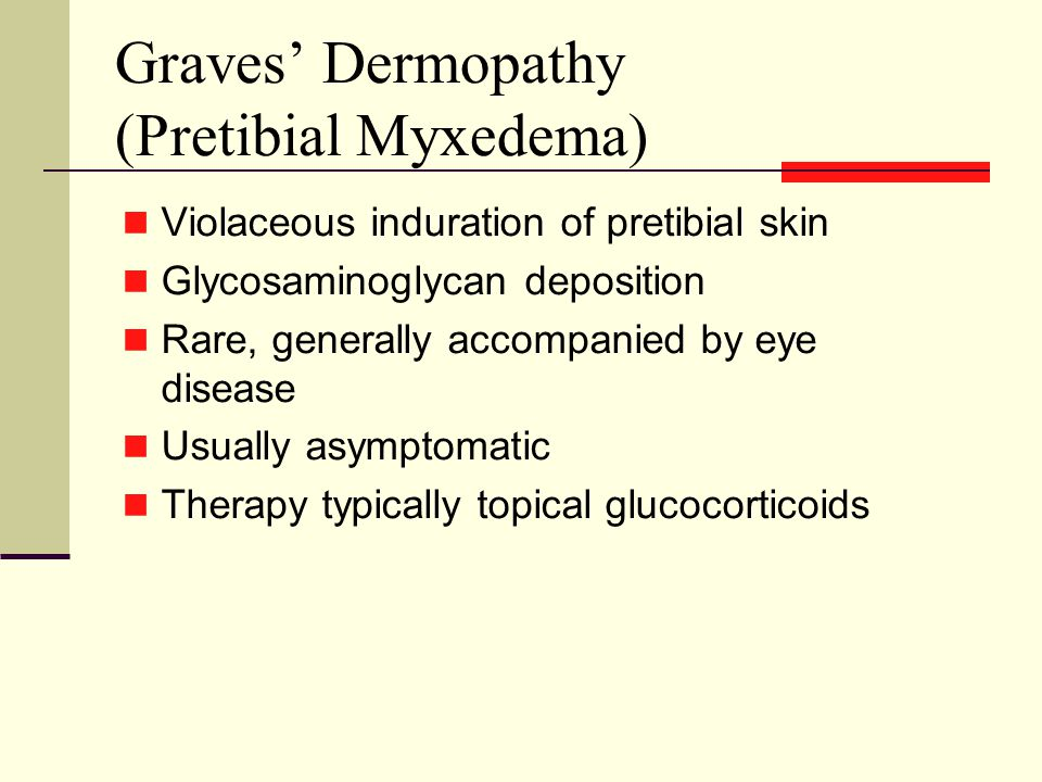 Graves' Dermopathy (Pretibial Myxedema) Violaceous induration of pretibial skin Glycosaminoglycan deposition Rare, generally accompanied by eye disease Usually asymptomatic Therapy typically topical glucocorticoids