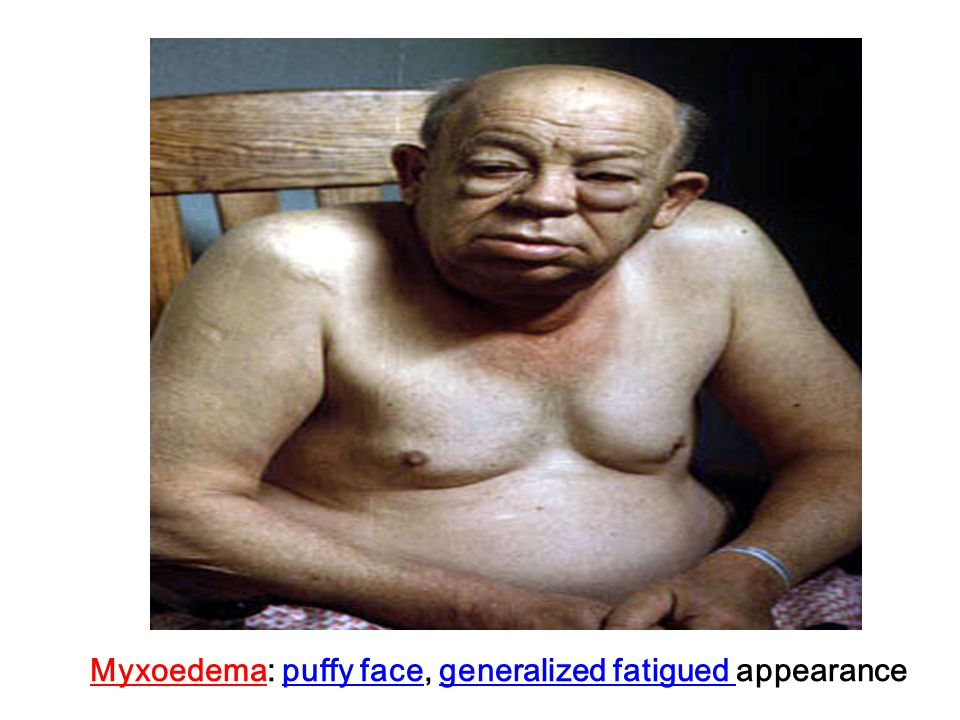 Myxoedema: puffy face, generalized fatigued appearance
