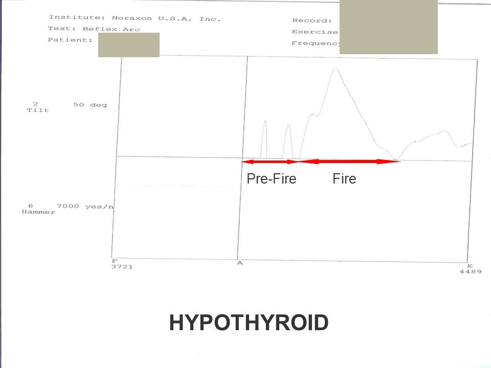 Pre-FireFire HYPOTHYROID