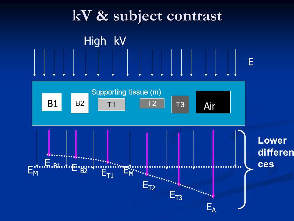 kV & subject contrast B2 T1 T2 T3 E E B1 E B2 E T1 EMEM E T2 E T3 EAEA High kV B B1 Air Supporting tissue (m) EMEM Lower differen ces