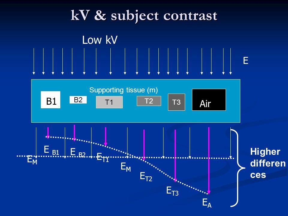 kV & subject contrast B2 T1 T2 T3 E E B1 E B2 E T1 EMEM E T2 E T3 EAEA Low kV B B1 Air Supporting tissue (m) EMEM Higher differen ces