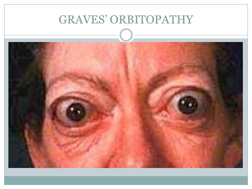 GRAVES' ORBITOPATHY