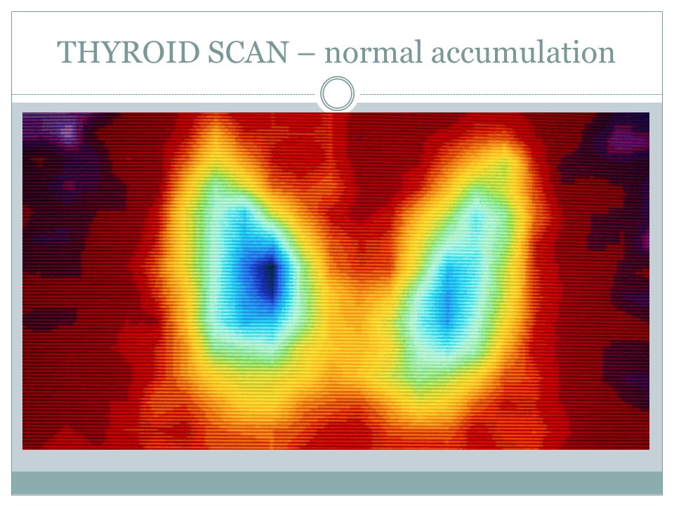 THYROID SCAN – normal accumulation