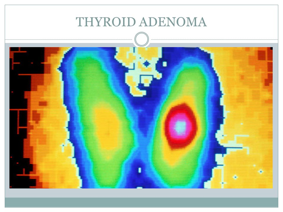 THYROID ADENOMA
