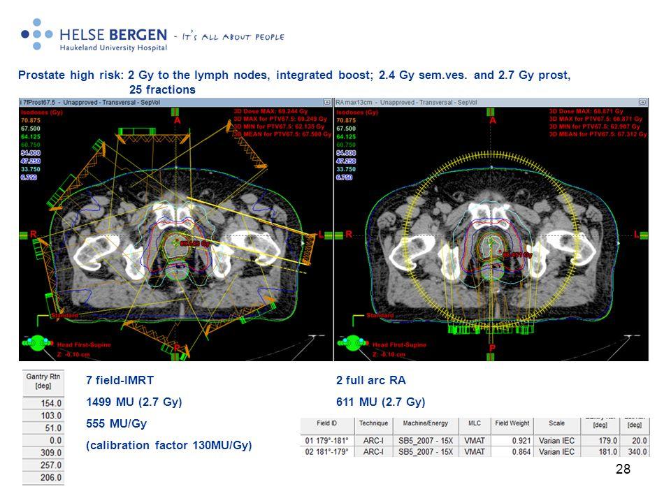 28 7 field-IMRT 1499 MU (2.7 Gy) 555 MU/Gy (calibration factor 130MU/Gy) 2 full arc RA 611 MU (2.7 Gy) Prostate high risk: 2 Gy to the lymph nodes, integrated boost; 2.4 Gy sem.ves.