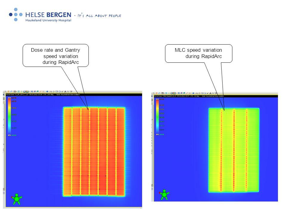 4 MLC speed variation during RapidArc Dose rate and Gantry speed variation during RapidArc