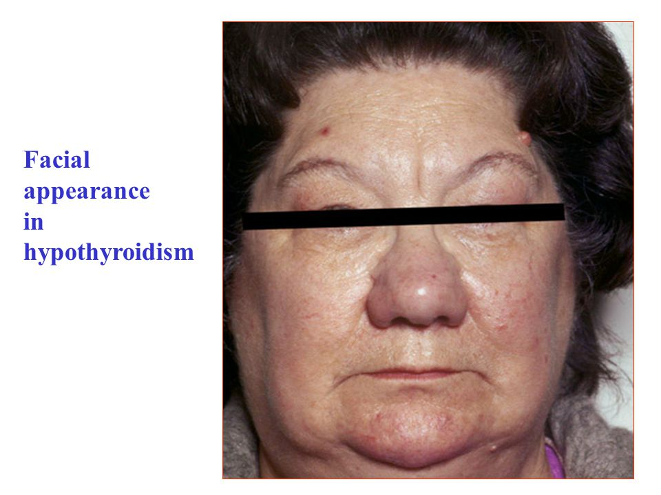 T3&T4 – indications: hypothyroidism T3 is reserved for patients with myxoedemic coma.
