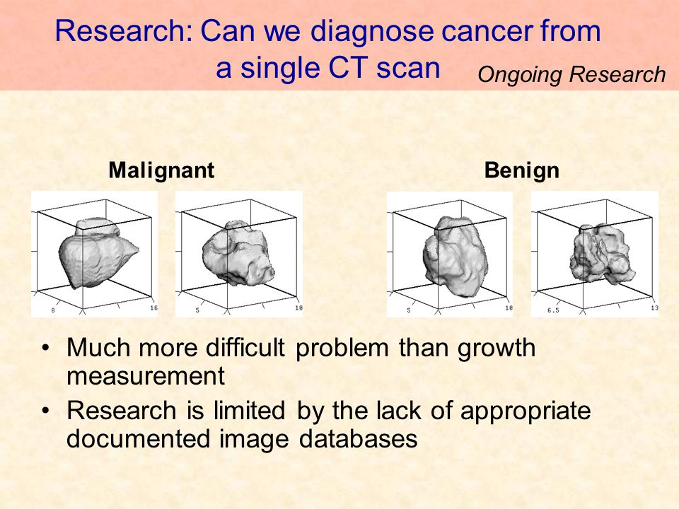 Research: Can we diagnose cancer from a single CT scan Much more difficult problem than growth measurement Research is limited by the lack of appropriate documented image databases BenignMalignant Ongoing Research