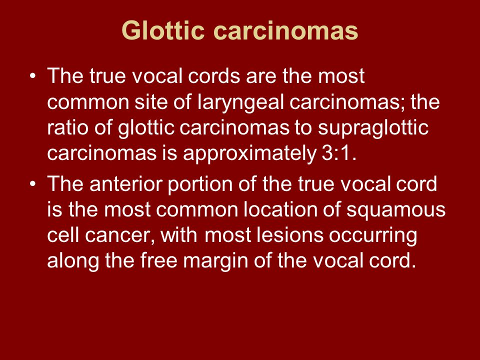 Glottic carcinomas The true vocal cords are the most common site of laryngeal carcinomas; the ratio of glottic carcinomas to supraglottic carcinomas i