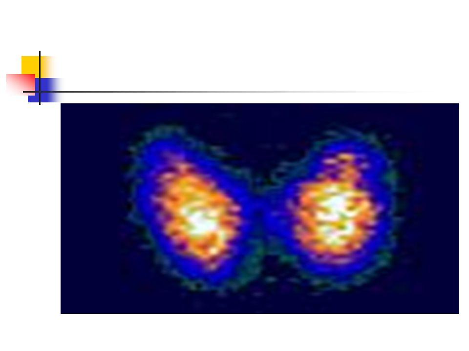 Case 14 A] Palpitations, 10 weeks post partum Ft4 32 TSH 0.2 B] Tired, 10 weeks post partum FT4 9 TSH 8