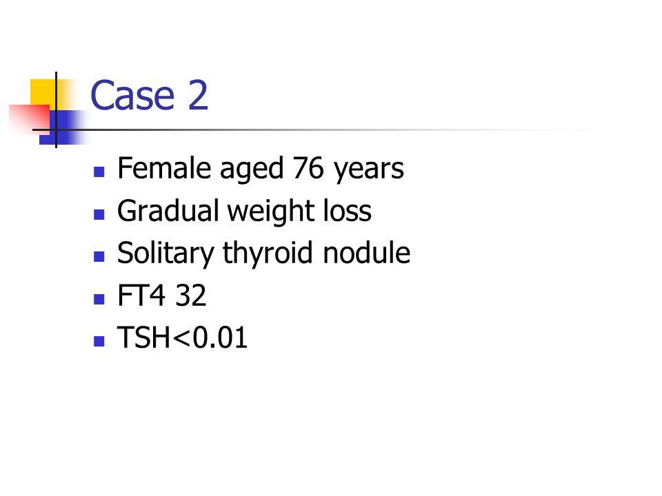 Case 2 Female aged 76 years Gradual weight loss Solitary thyroid nodule FT4 32 TSH<0.01