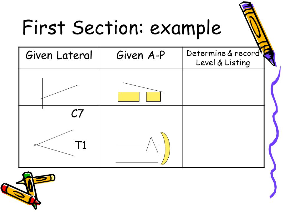 First Section: example Given LateralGiven A-P Determine & record Level & Listing C7 T1