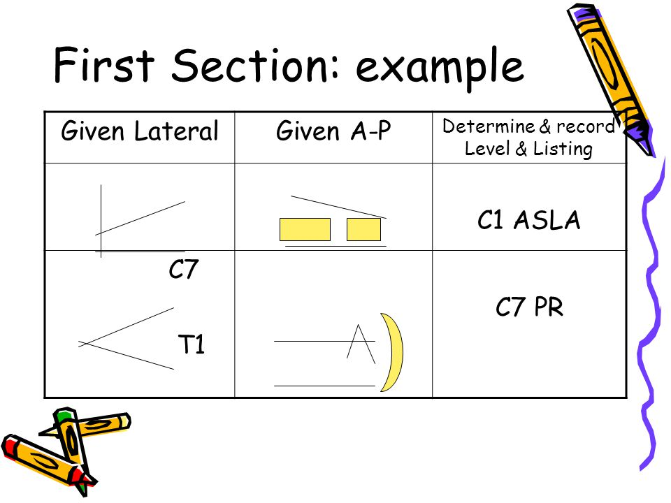 First Section: example Given LateralGiven A-P Determine & record Level & Listing C1 ASLA C7 T1 C7 PR