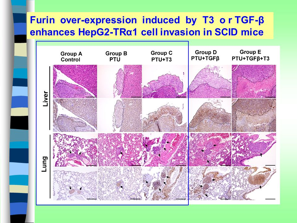 Furin over-expression induced by T3 o r TGF-β enhances HepG2-TRα1 cell invasion in SCID mice