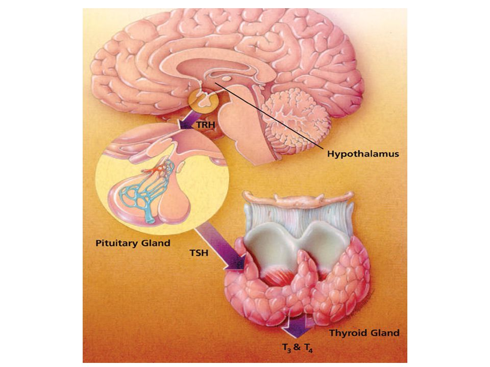 ►Hypothyroidism is a condition in which the thyroid gland does not produce enough thyroid hormone ►It is the most common thyroid disorder What is it?