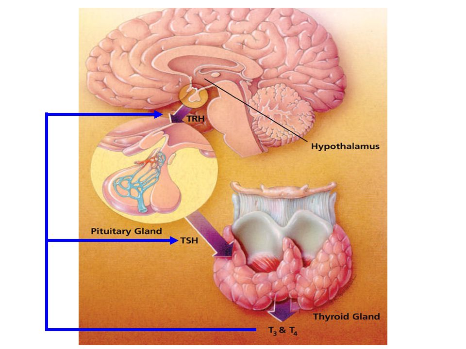 Causes ►In ~95% of cases, hypothyroidism is due to a problem in the thyroid gland itself and is called primary hypothyroidism ►Rarely, hypothyroidism is a result of decreased production of thyroid-stimulating hormone (TSH) by the pituitary gland ►Thyroid problems are more common in women, increase with age and are more common in whites and Mexican Americans than in blacks