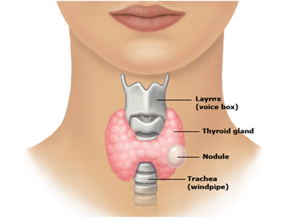 ►Thyroid nodules are very common; up to half of all people have at least one nodule, although most do not know about it ►Most nodules don't change the amount of thyroid hormone in the body, but some cause the thyroid to make too much hormone.