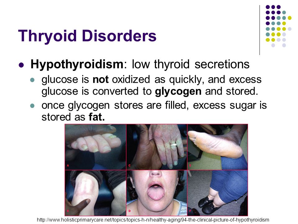 Thyroid Disorders: Goiter Goiter Lack of iodine for producing T4 and T3 TSH produced continuously in effort to increase levels of T4 and T3 NO Feedback because functional T4 and T3 not formed Overstimulated thyroid enlarges Metabolic rate decreases Hypothalamus TRH Pituitary TSH Thyroid