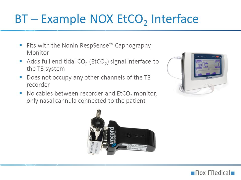  Fits with the Nonin RespSense™ Capnography Monitor  Adds full end tidal CO 2 (EtCO 2 ) signal interface to the T3 system  Does not occupy any othe