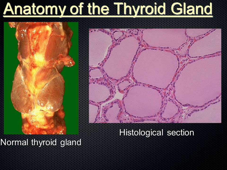 Normal thyroid gland Histological section Anatomy of the Thyroid Gland