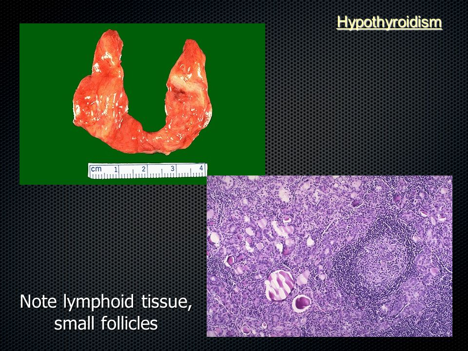 Note lymphoid tissue, small follicles Hypothyroidism