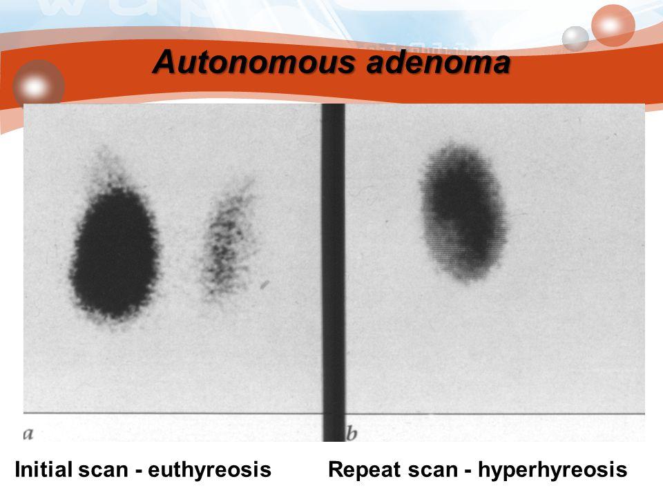 Autonomous adenoma Initial scan - euthyreosisRepeat scan - hyperhyreosis