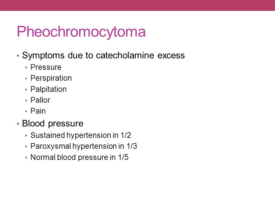 Pheochromocytoma Symptoms due to catecholamine excess Pressure Perspiration Palpitation Pallor Pain Blood pressure Sustained hypertension in 1/2 Parox