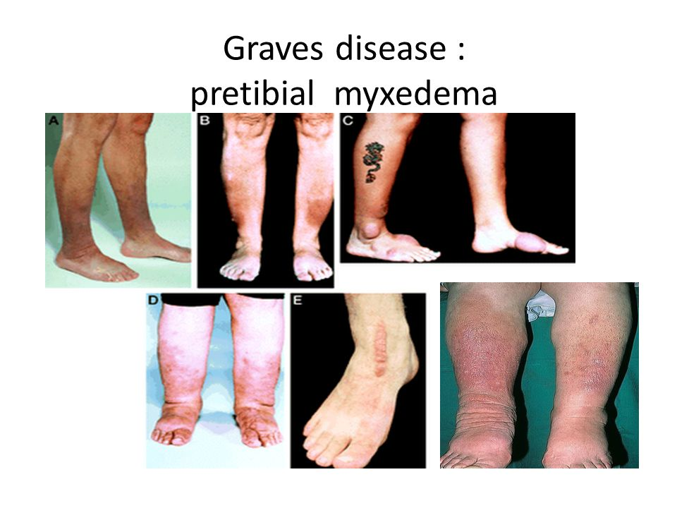 Graves disease : pretibial myxedema