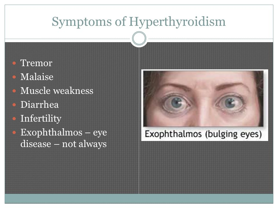 Symptoms of Hyperthyroidism Tremor Malaise Muscle weakness Diarrhea Infertility Exophthalmos – eye disease – not always