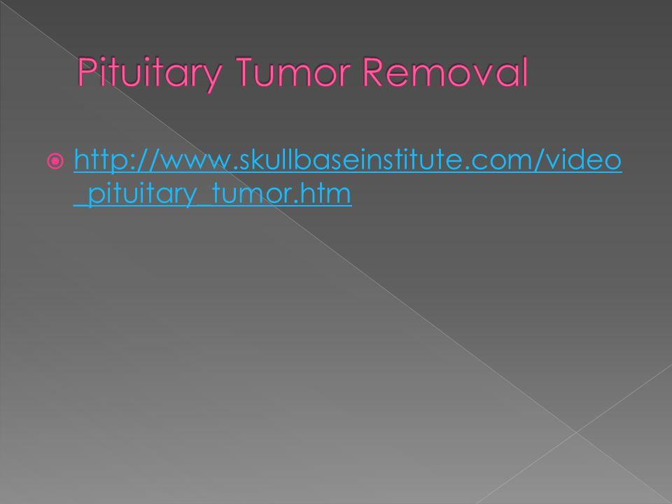  http://www.skullbaseinstitute.com/video _pituitary_tumor.htm http://www.skullbaseinstitute.com/video _pituitary_tumor.htm