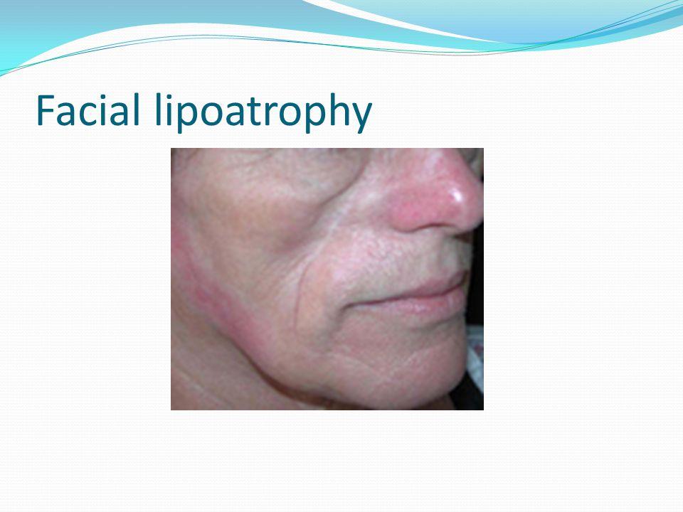 Facial lipoatrophy