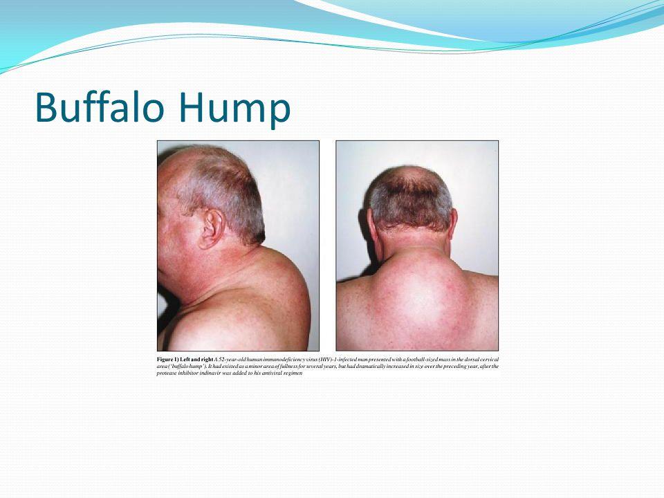 Peripheral Lipoatrophy
