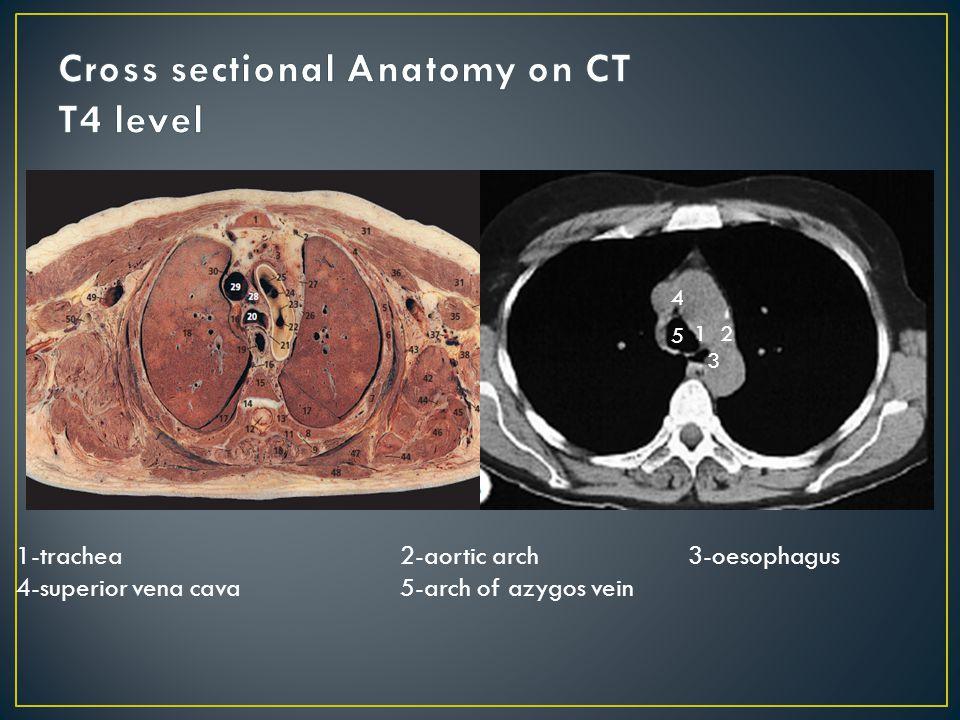 12 3 4 5 1-trachea2-aortic arch3-oesophagus 4-superior vena cava5-arch of azygos vein