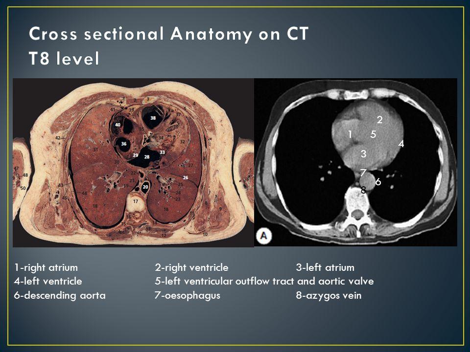 1 2 3 4 5 6 7 8 1-right atrium2-right ventricle3-left atrium 4-left ventricle5-left ventricular outflow tract and aortic valve 6-descending aorta7-oesophagus8-azygos vein