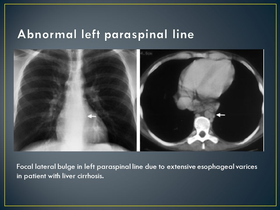 Focal lateral bulge in left paraspinal line due to extensive esophageal varices in patient with liver cirrhosis.