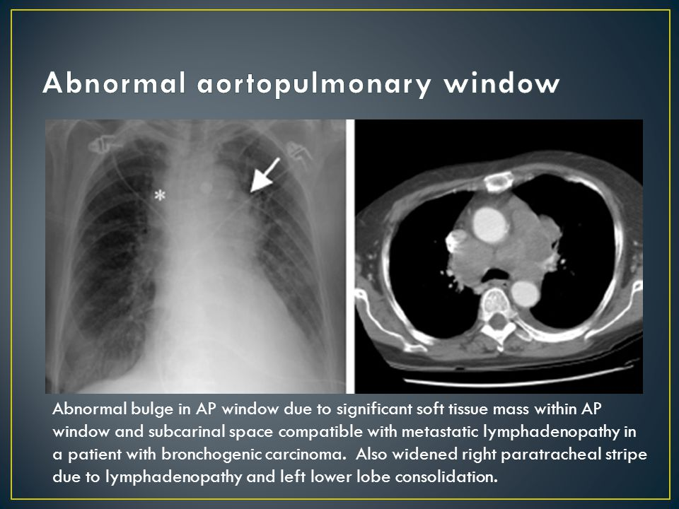 Abnormal bulge in AP window due to significant soft tissue mass within AP window and subcarinal space compatible with metastatic lymphadenopathy in a