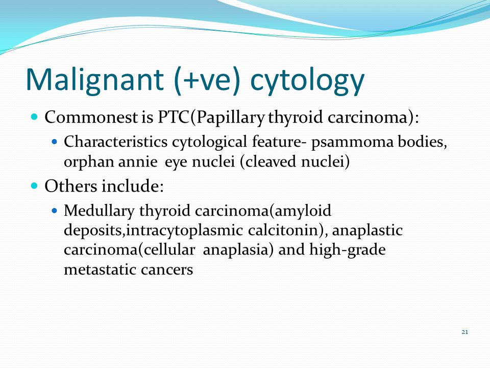 Malignant (+ve) cytology Commonest is PTC(Papillary thyroid carcinoma): Characteristics cytological feature- psammoma bodies, orphan annie eye nuclei