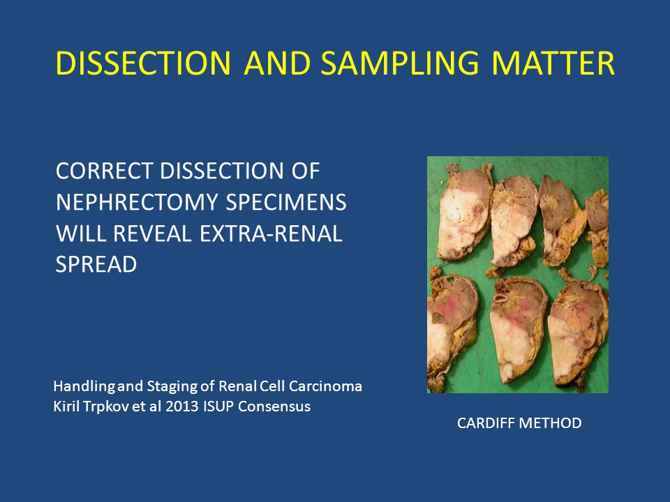DISSECTION AND SAMPLING MATTER CORRECT DISSECTION OF NEPHRECTOMY SPECIMENS WILL REVEAL EXTRA-RENAL SPREAD Handling and Staging of Renal Cell Carcinoma