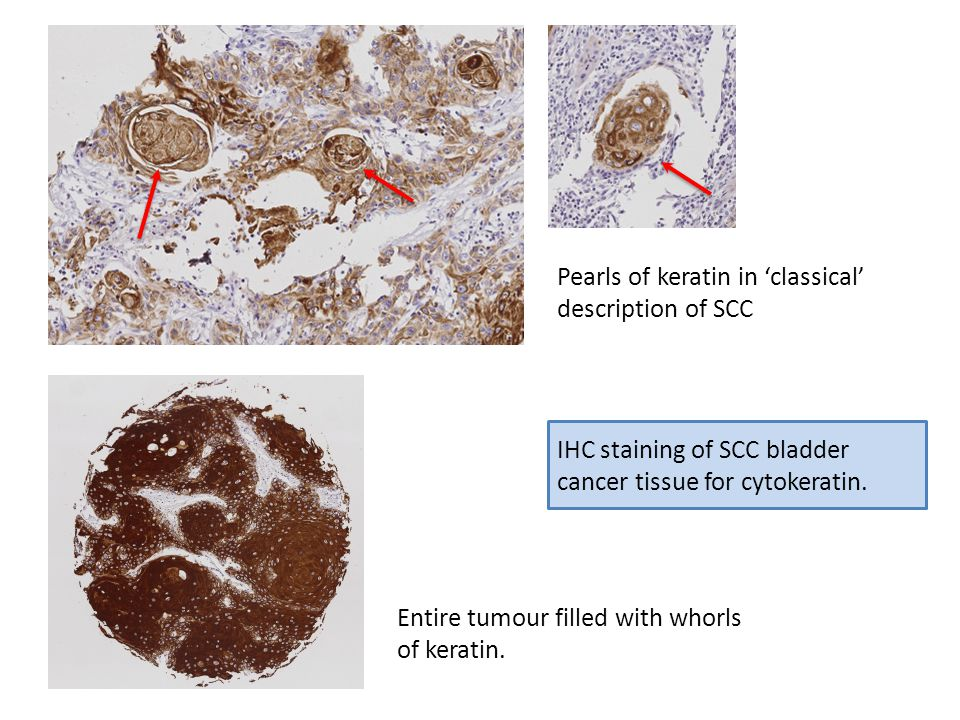 Pearls of keratin in 'classical' description of SCC Entire tumour filled with whorls of keratin.
