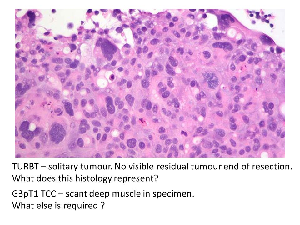 TURBT – solitary tumour. No visible residual tumour end of resection.
