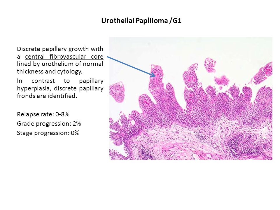 Urothelial Papilloma /G1 Discrete papillary growth with a central fibrovascular core lined by urothelium of normal thickness and cytology.
